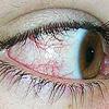 兒童過敏性結膜炎