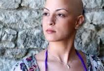 癌症病人毛髮脫落的照顧