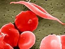 地中海型貧血
