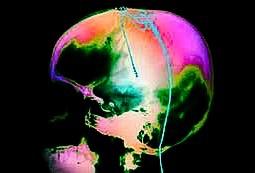 腦部深層刺激器術後衛教說明