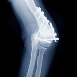 預防跌倒受傷  避免骨折