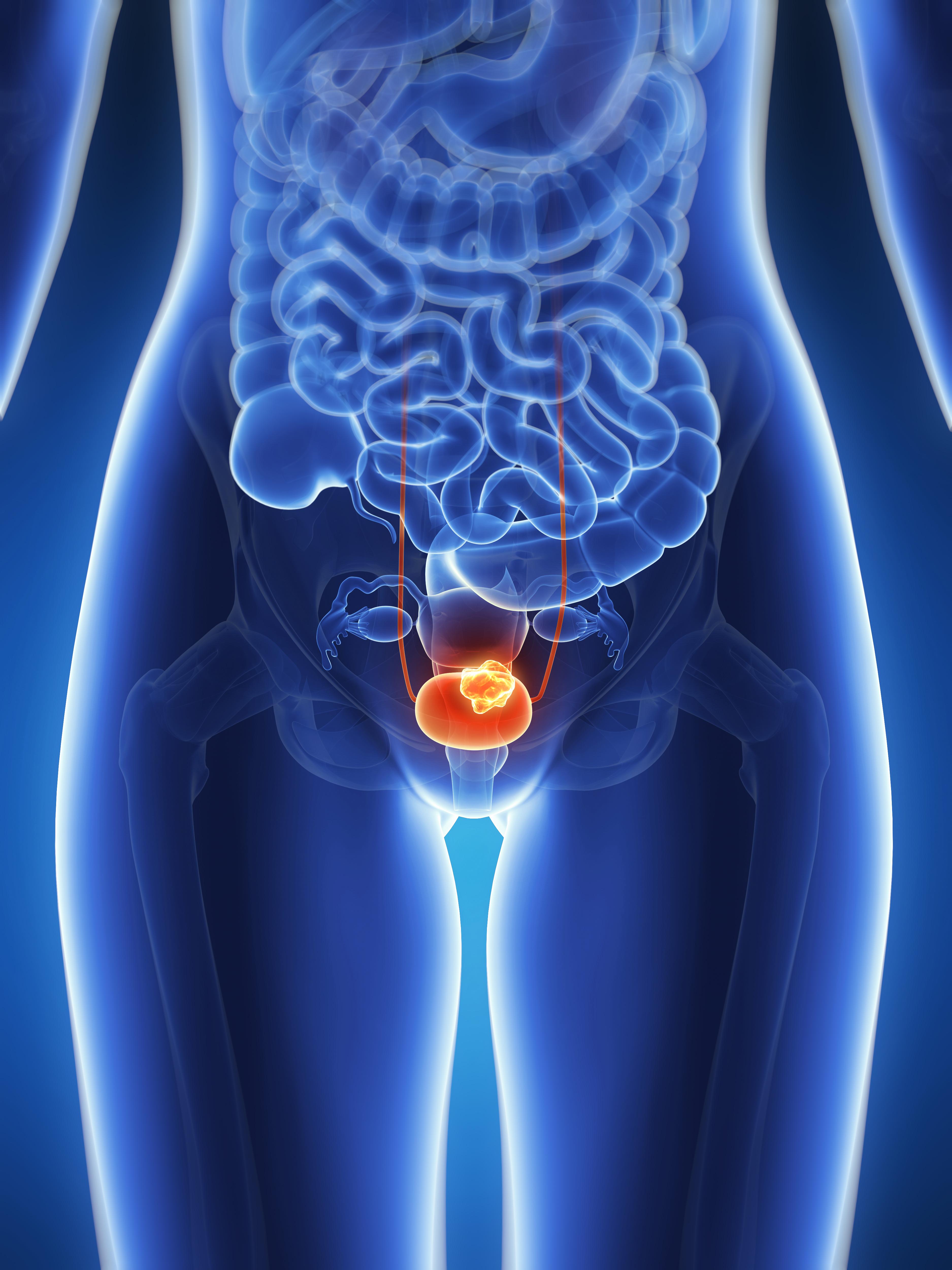 膀胱癌介紹:症狀與放射、化療、免疫治療方式說明